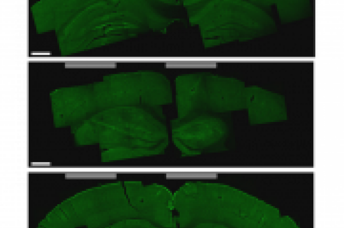 Image of brain slices.