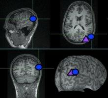 Neuroscience of Morality