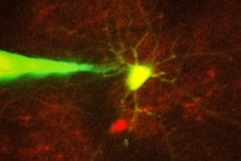 Image: Ho-Jun Suk - In this image, a pipette guided by a robotic arm approaches a neuron identified with a fluorescent stain.