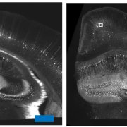 Boyden, E., Chen, F. & Tillberg, P. / MIT / Courtesy of National Institutes of Health A slice of a mouse brain (left) was expanded by nearly five-fold in each dimension by adding a water-soaking salt. The result — shown at smaller magnification (right) for comparison — has its anatomical structures are essentially unchanged.