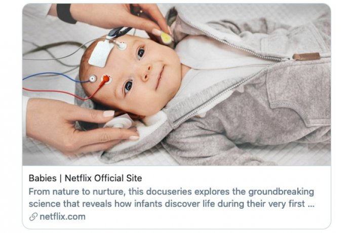 Happy baby with electrodes on head