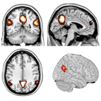 fMRI indicating areas of the brain used in considering someone's intentions; right and left TPJ, MPFC & precuneus. Image courtesy of Professor Rebecca Saxe.