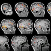 MRI sclices of human brain