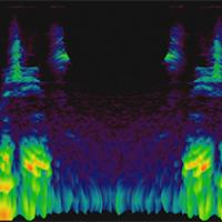 audio waveform graphic