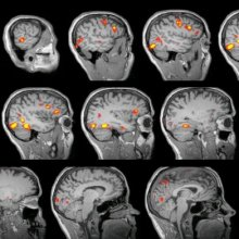 MRI sclices of human brain