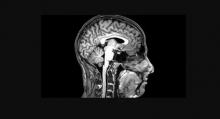 MRI view of human head/brain