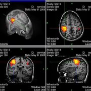 4 angles of an fMRI scan